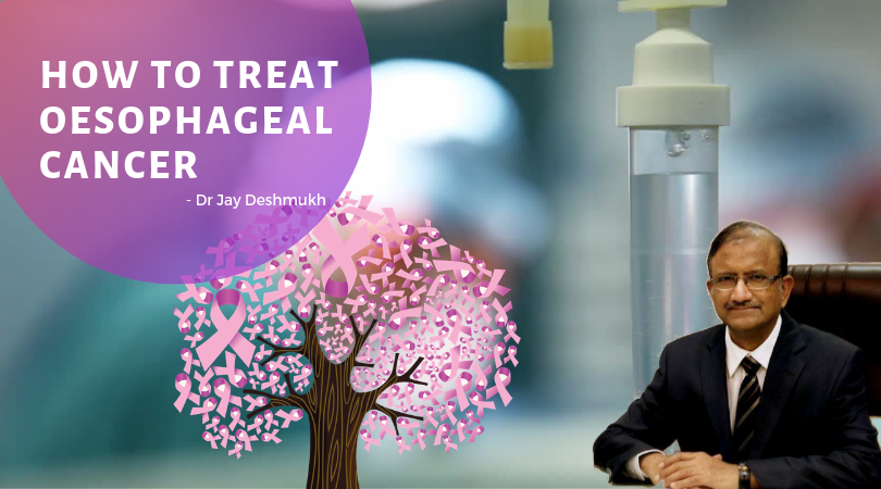 Oesophageal Cancer Treatment | Sunflower Hospital Nagpur | Dr Jay Deshmukh